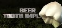 Beer Tooth Implant   Salta Beer